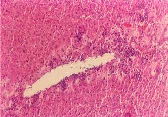 四塩化炭素により損傷を受けたマウス肝臓(200×)